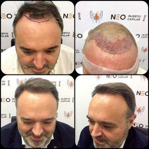 caso3-neo-injerto-capilar