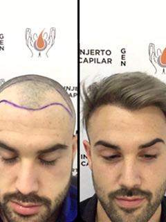 neo-injerto-capilar-casos1